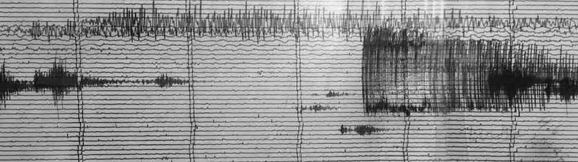 Seismogram from Kilauea recording station; spot the 2011 Tohoku earthquake...